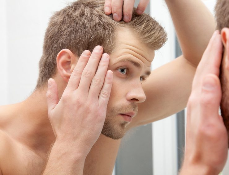 What Can I Do About Hair Loss?