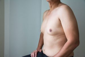 How Gynecomastia Affects Men's Lives